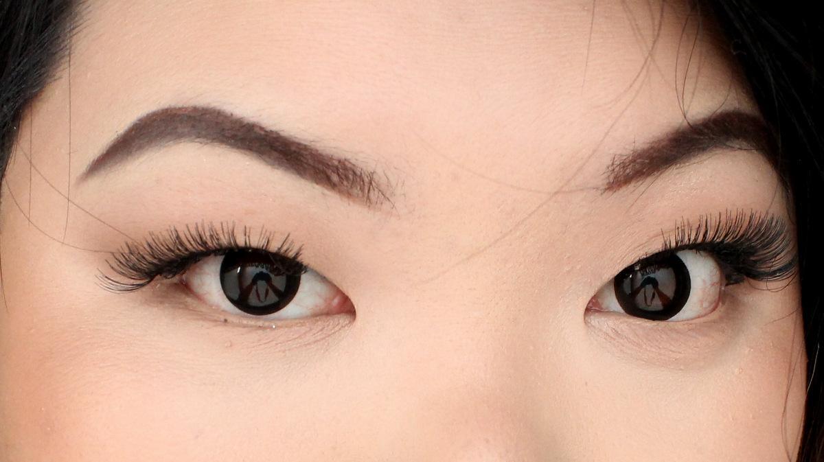 Mijn binnenste ooghoeken zijn vrij van wimpers.